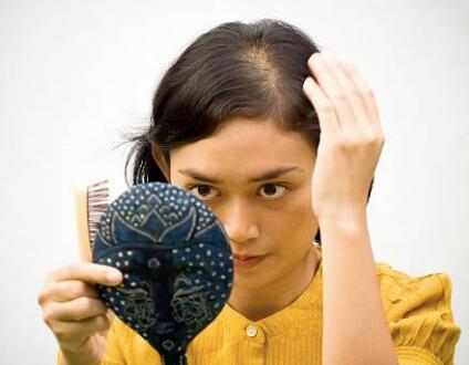薄毛を気にしている女性の写真です。