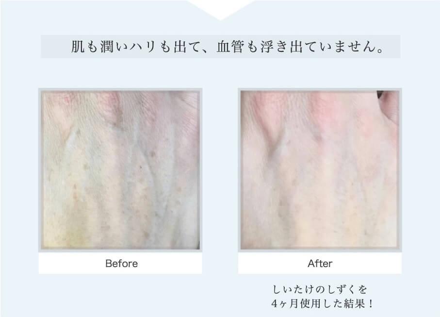 しいたけの美容液でハリと潤いが改善されていることが分かる写真です。