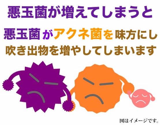お肌の悪玉菌が増えてしまうと肌が荒れてしまい事を説明している写真です。